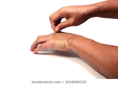 Photo d'une main qui pince la peau du dessus d'une autre main et tire celle-ci vers le haut, pour expliquer le pinching test.